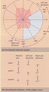The hexaxial reference system illustrating the six leads in the frontal plane, e.g. lead I is 0°, lead II is +60°,