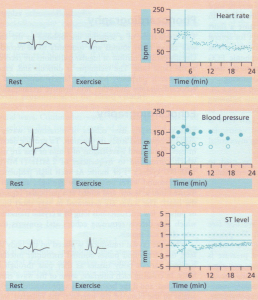 Electrocardiographic,