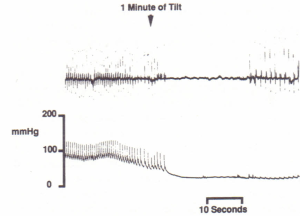 ECG (top trace) and arterial blood pressure