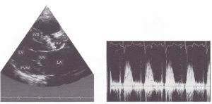 a) Two-dimensional echocardiogram (long-axis view)