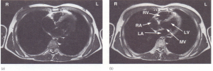 Magnetic resonance image (MRI) showing a pair