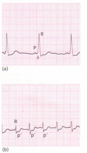 An ECG showing Wolff-Parkinson-White syndrome.