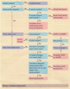 Management of tachycardia. Narrow complex.