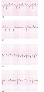Two examplesof the slowing of tachycardia