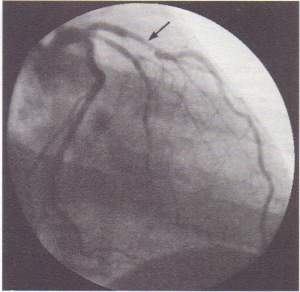 11.54 X-ray contrast material is injected into the ostium