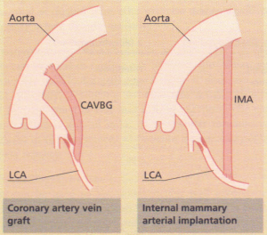 The relief of coronary obstruction by surgical techniques: