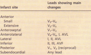 Typical ECG changes in myocardial infarction.