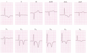 A 12-lead ECG showing an acute inferior wall
