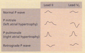 A bifid P wave as seen on the ECG in mitral