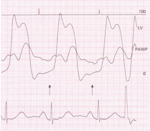 A 12-lead ECG showing features