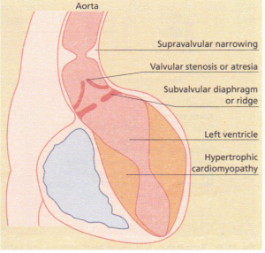 Several forms of left ventricular outflow tract obstruction.