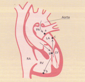 Jet lesions produced in infective endocarditis.