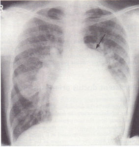 A PA chest X-ray from a young woman with an atrial septal defect.
