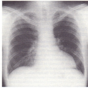 PA plain chest X-ray from a patient with coarctation of the aorta.
