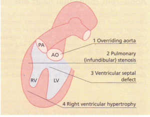 The four features of Fallot's tetralogy.