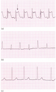 ECGs associated with pericarditis.