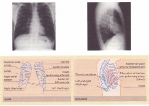 Chest X-rays.