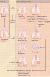 The manifestations of primary and post-primary tuberculosis.