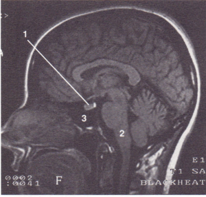 MRI of a sagittal section of the brain showing the pituitary fossa