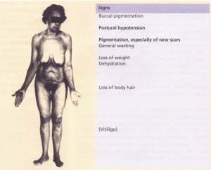 The signs of primary hypoadrenalism (Addison's disease).
