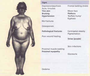 The signs of Cushing's syndrome. The bold type indicates signs of most value in discriminating Cushing's syndrome from simple obesity and hirsuties.
