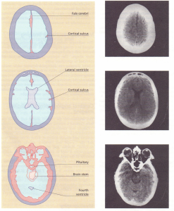 Normal (T head scan: transverse sections at three levels.
