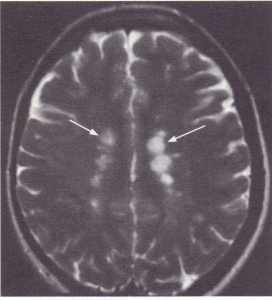 Multiple areas of high signal on T2 weighted images in the peri-ventricular white matter in a patient with multiple sclerosis.