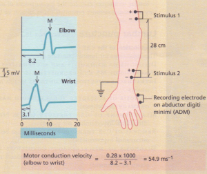 Measurement of motor conduction velocity of the ulnar nerve. A recording electrode on the abductor digiti minimi records the muscle action potential (M) from the ulnar nerve at the elbow (stimulus 1) and at the wrist (stimulus 2). From these values the motor conduction velocity can be calculated.